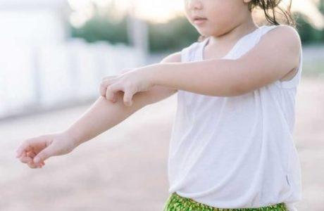 obat kulit gatal pada anak