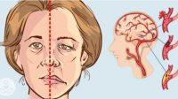 stroke jenis penyakit paling mematikan
